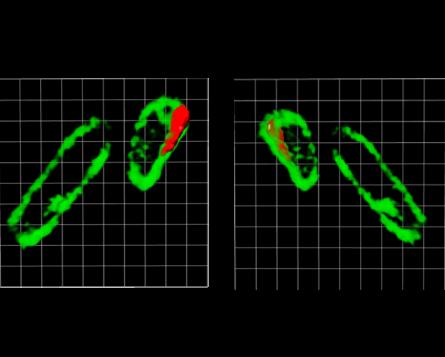 Imágenes de microscopía de bacteria y nanopartículas.